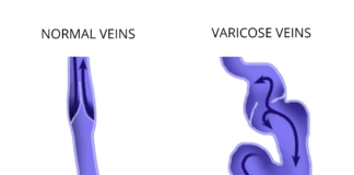 remedies for varicose veins