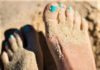 Toe fungus remedies